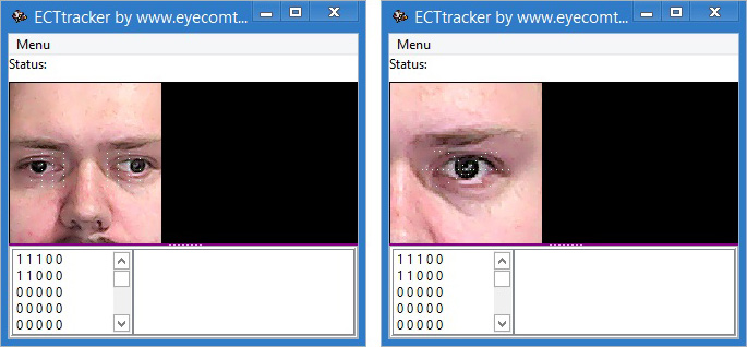 ECTtracker identifying structures for one and both eyes